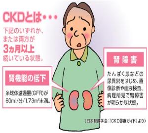 慢性腎臓病(CKD)とは
